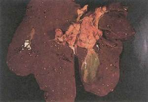 lesions on human liver picture 10