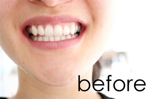 whiter teeth picture 6