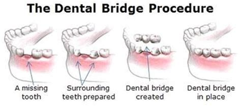 cost of a bridge teeth picture 19