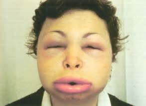 gastrointestinal conditions caused by hereditary angioedema picture 3