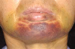 infection rash on chin picture 6