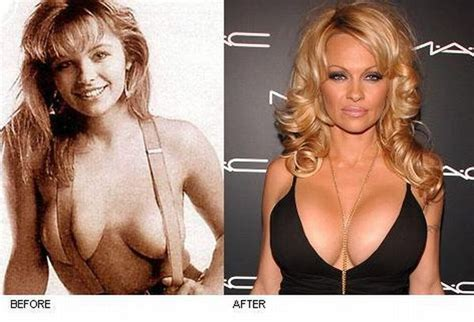 women with 2000cc implants picture 6