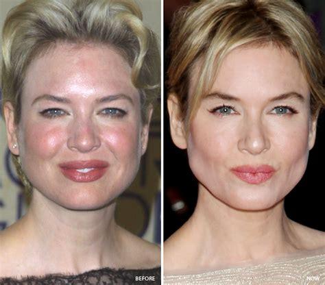 pre face lift skin care line picture 2