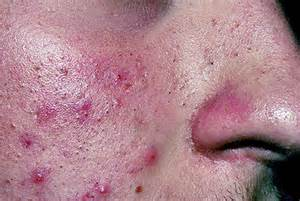 acne pus smells picture 17
