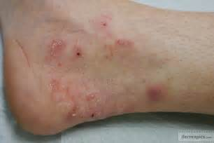 bb infecting human skin cultures picture 14
