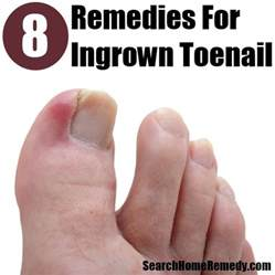 toenail removal surgery fungus picture 6