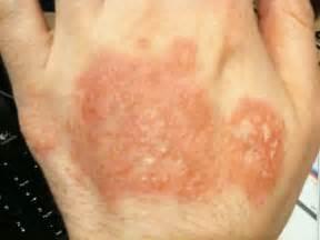 hand skin rash picture 1