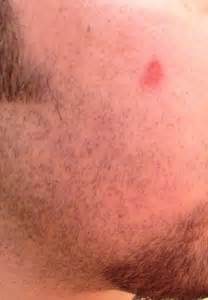 skin rash on torso picture 13