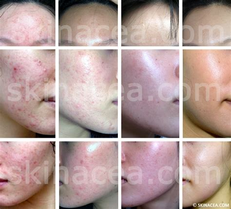 clearing up acne picture 7