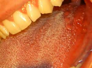 warts under tongue picture 11
