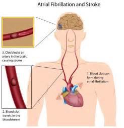 large el blockage symptoms picture 2