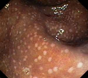 what is melanosis in the colon picture 15