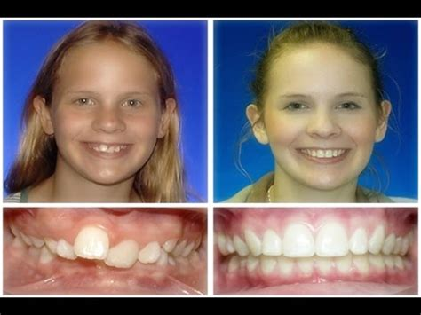 crowded teeth picture 11