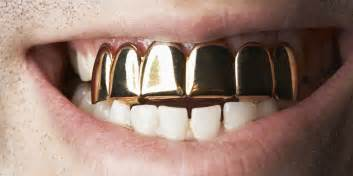 gold teeth business picture 9