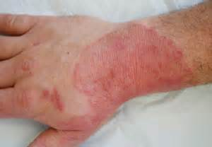 diabetes skin infections picture 11