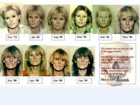 meth and drugs physical aging picture 2