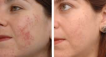naturally dissolve sistic acne picture 7