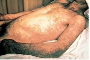 hiv skin rash pictures picture 6