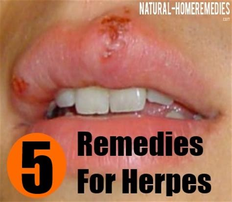home remedies for herpes picture 10