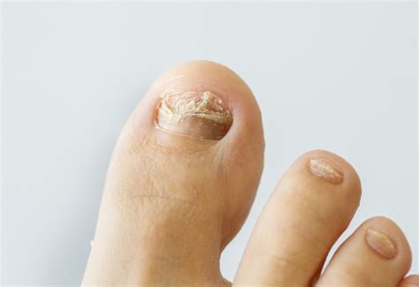 can toe nail fungus goaway picture 5