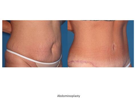 wilmington breast enhancement picture 1