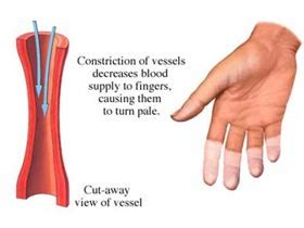 poor blood circulation affects implatation? picture 17