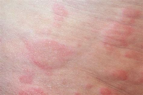 idiopathic hives picture 11