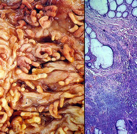 colon polps picture 2