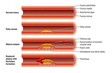 ht low cholesterol diet picture 14
