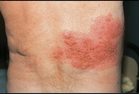 skin diseases shingles picture 7