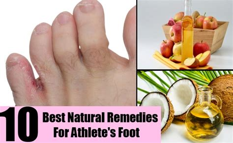 athlete foot herbal remedy picture 10