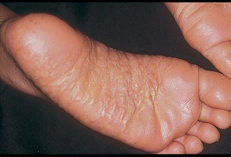 feet skin problems picture 11