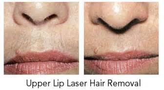 laser hair removal upper lip picture 10