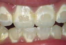 decalcification of teeth picture 7