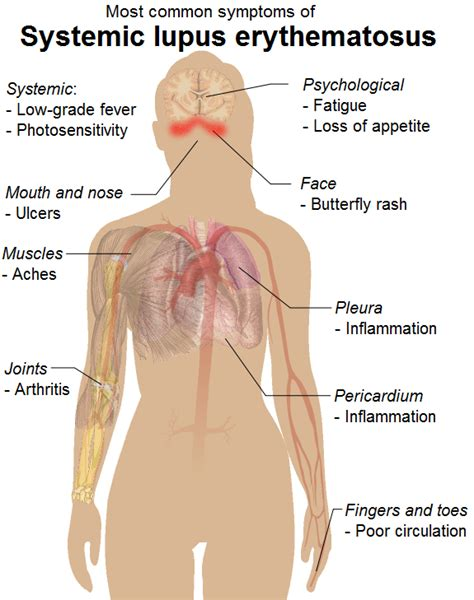 Death, illness, or physical damages due to colon picture 9