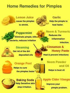 herbs that help acne picture 1