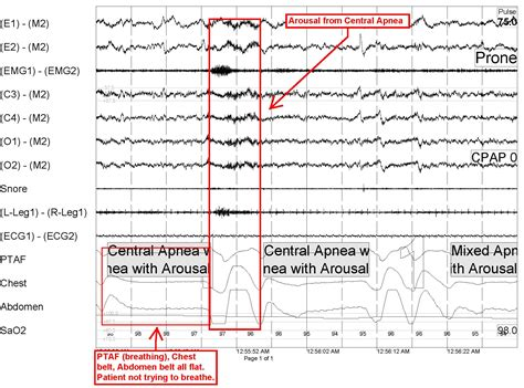 central sleep apnea picture 2
