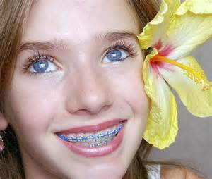 colored braces teeth picture 11