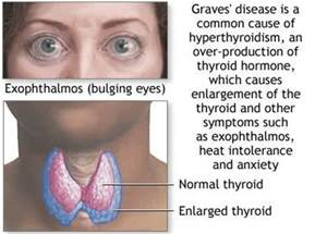 diseases of thyroid picture 1