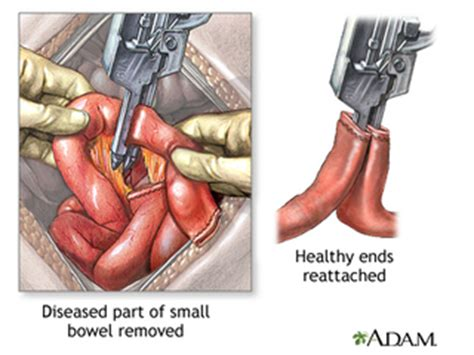 intestinal blockage manual finger removal picture 3