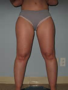 lymphedema skin disorder picture 6