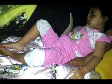sleep convulsions picture 9