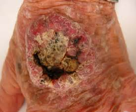 squamous cell carcinoma spread causing weight loss picture 4