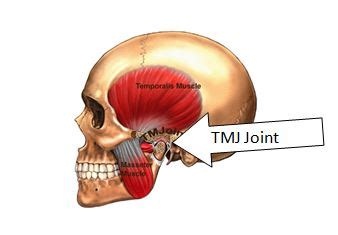 pain jaw joint picture 3