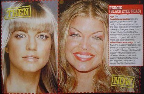 meth wrinkles picture 6