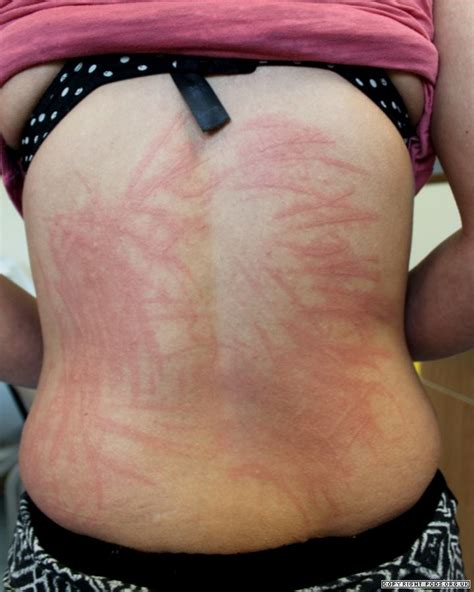 Physical urticaria picture 1