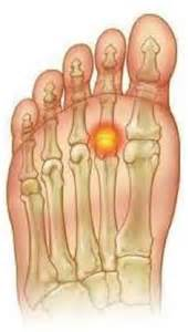 joint ball foot pain picture 1