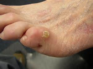 callus or wart picture 10