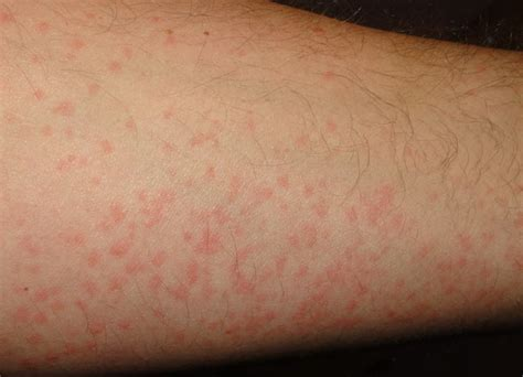 cure hives picture 1