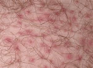 scalp boils picture 3